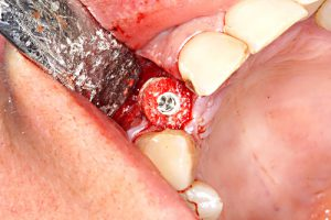 Implant fixes the ring in the residual bone