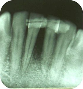 Radiograph shows osseous fill of the defect 6 months post-operative.