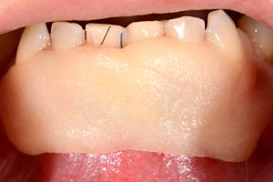 Primary wound closure and application of a periodontal dressing.