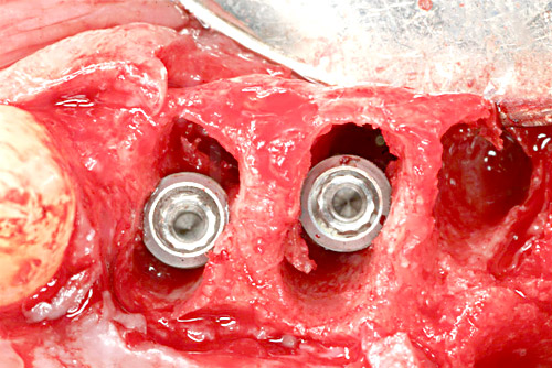 Immediate placement of two implants