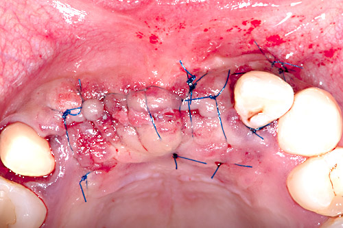 Non resorbable sutures are stabilizing flap and sealing the wound