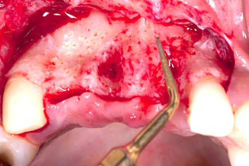 Perforation of the vestibular cortical plate of the ridge with Piezosurgery to improve nutrition for the augmented site