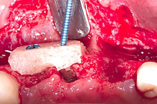 Stabilization of maxgraft® block with 2 screws for osteosynthesis