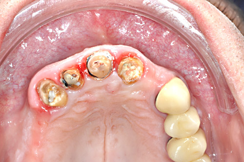 Clinical Situation in the maxilla before extraction