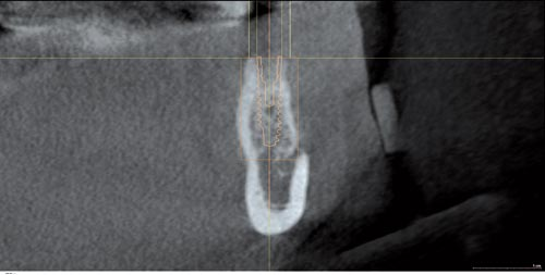 DVT image showing the reduced amount of bone available in the area of the mental foramen