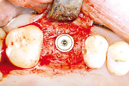 Inserted implant before wound closure