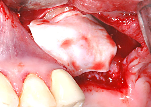 Covering of the augmentation site with the slowly resorbing Jason® membrane