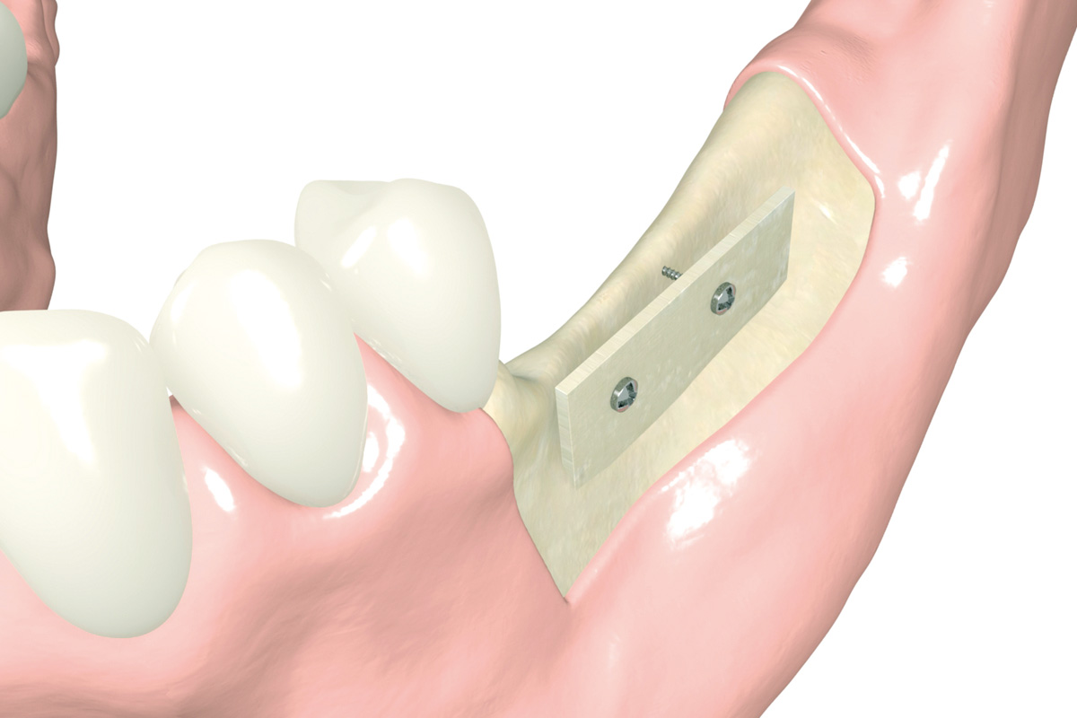 botiss dental - cortico_animation