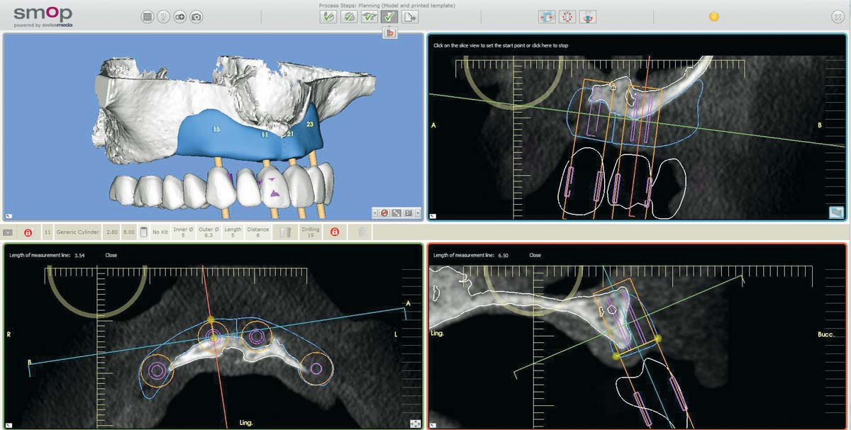 Treatment overview – implant planning