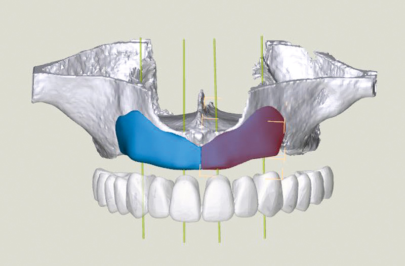 3D-Reconstruction of the maxilla including two maxgraft® bonebuilder blocks
