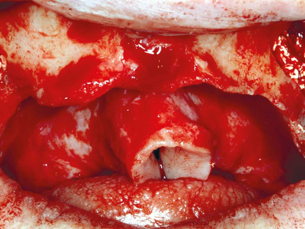 Preparation of the augmentation area with external sinus floor elevation on both sites using cerabone®