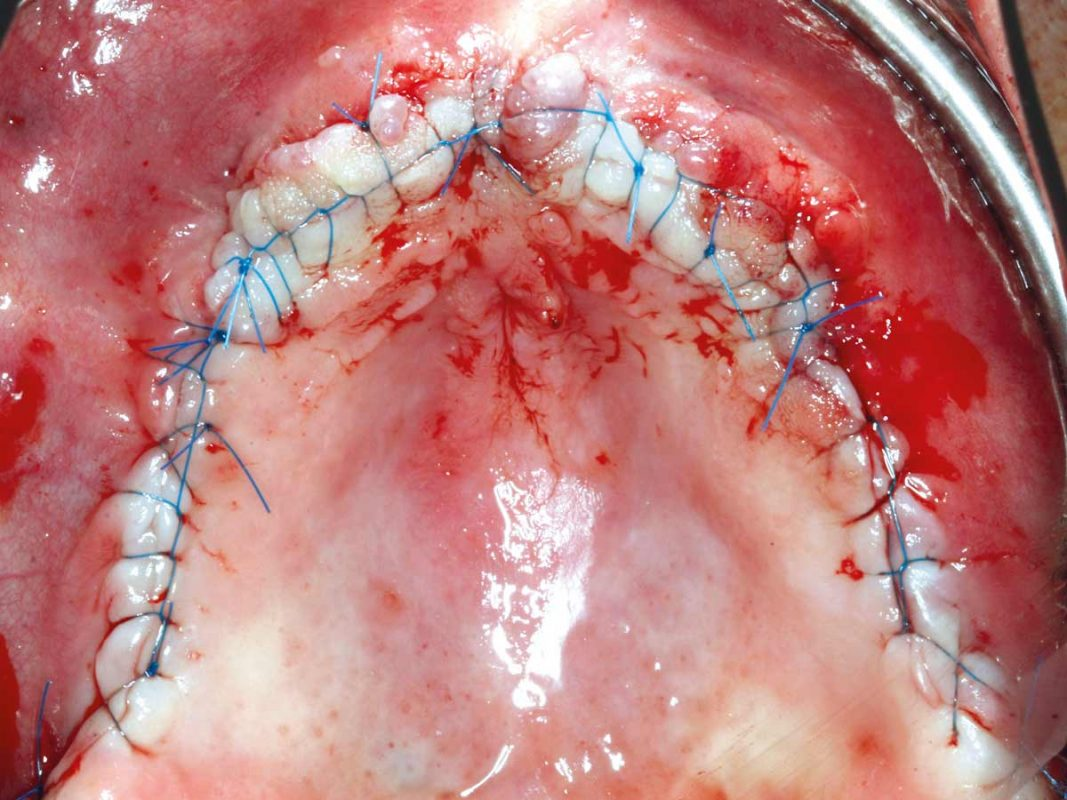 Tension-free and saliva-proof wound closure