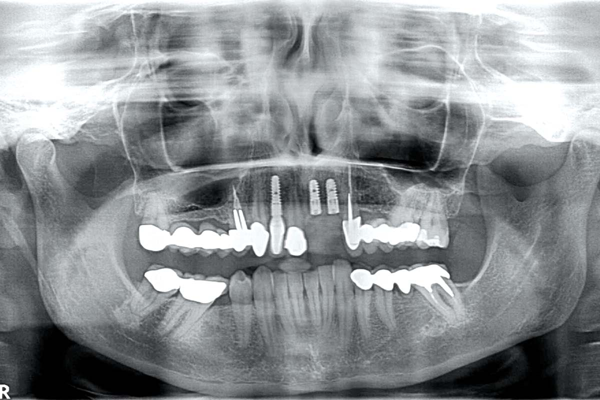 Radiological situation after re-entry
