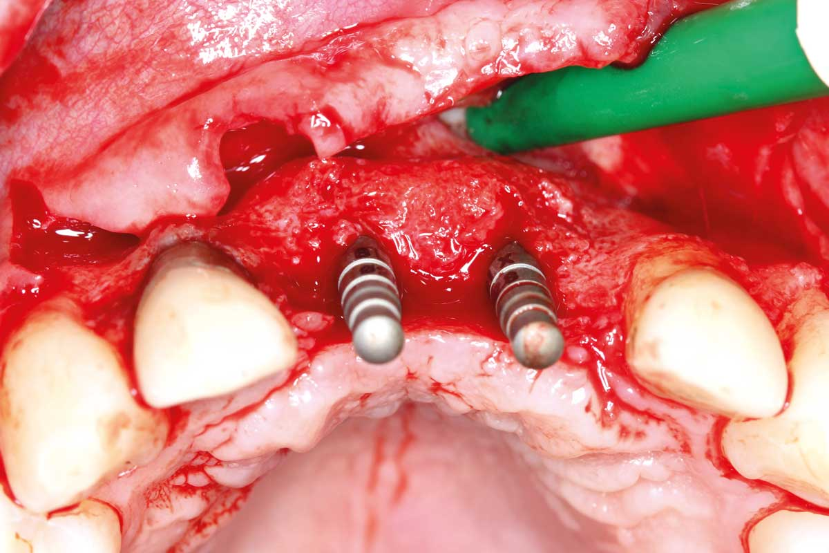Insertion of two Straumann BLX implants 3.75 x 14 mm / 3.75x 12 mm