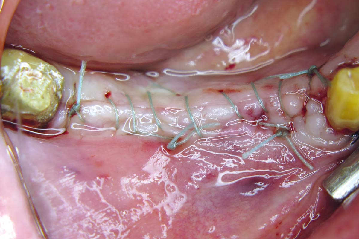Tension-and compression-free sutures