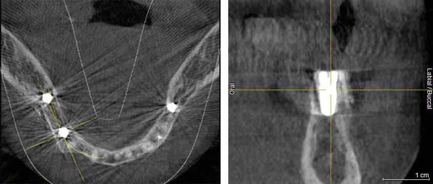 DVT after the implantation shows position of the implant within vital bone tissue and the adjacent allogenic cortical plate