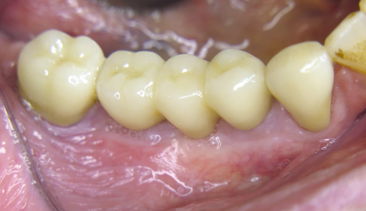 Final implant-retained denture with natural appearance one month after placing of gingiva formers
