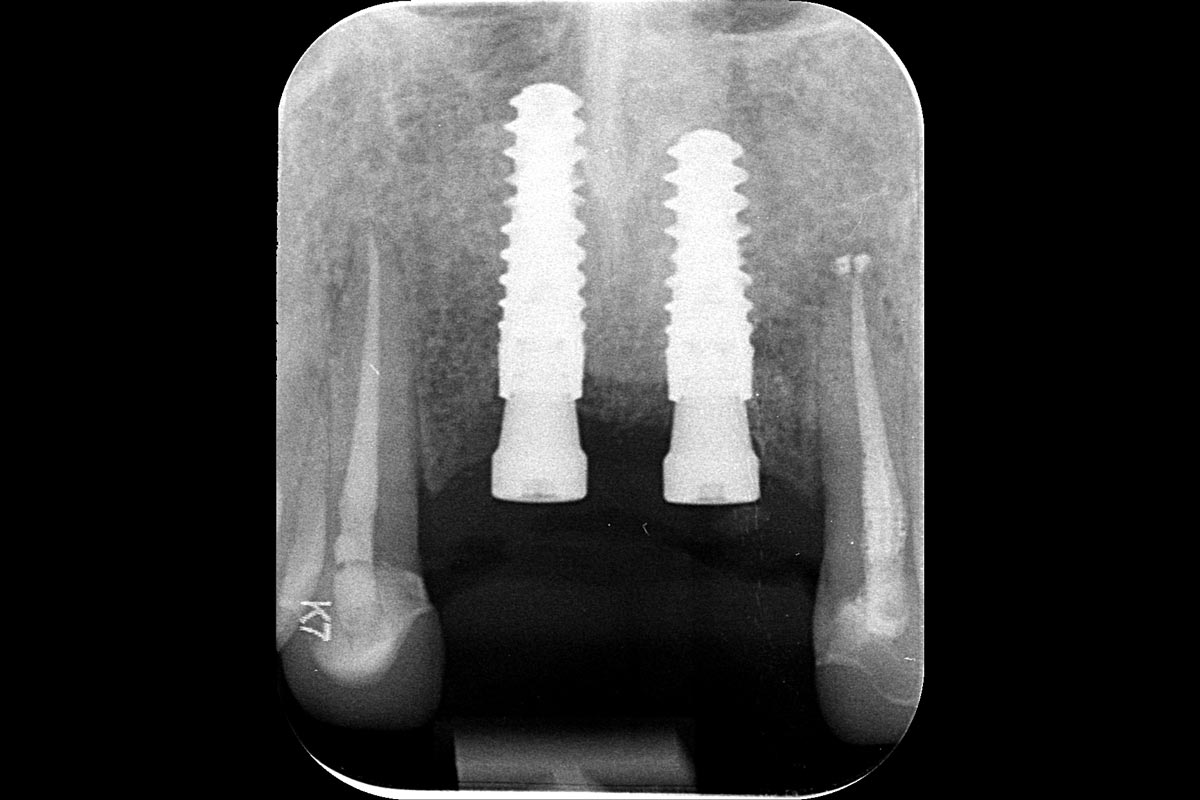 X-ray at implant installlation six months after augmentation