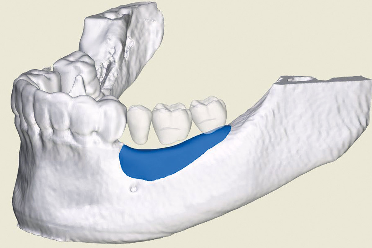 3D reconstruction of the bone defect and planned maxgraft® bonebuilder