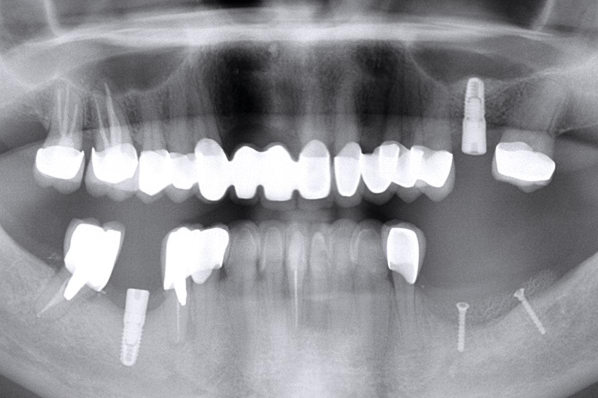 Radiographic control after augmentation