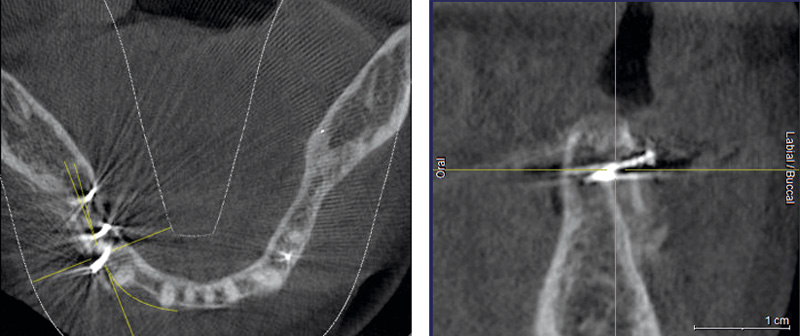 DVT recording after the augmentation shows the cortical plate about 3 to 4 mm distant from the host bone