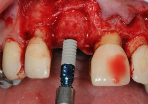 Placing the implant in order to fixate maxgraft® bonering