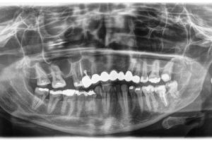 Initial situation: X-ray shows maxillary bone height of 1.5 mm in region 15