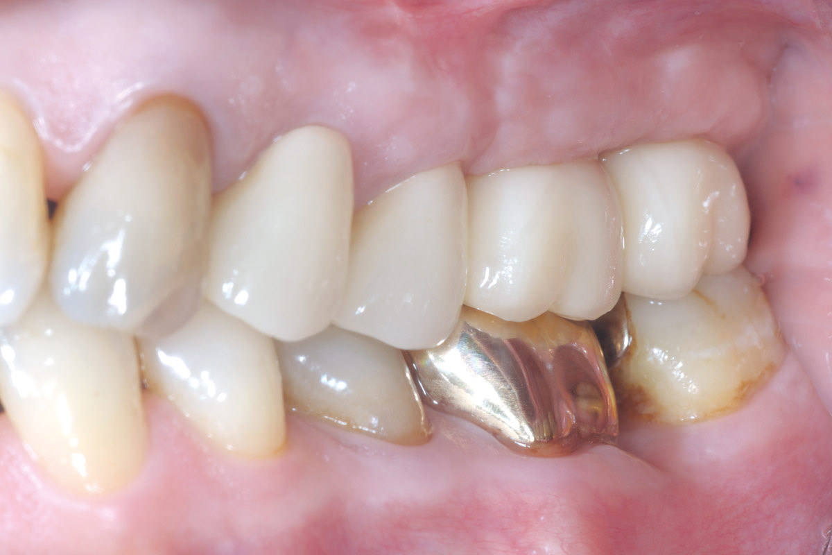 Final prosthetic restoration- proper implant-crown ratio compared to the neighboring teeth