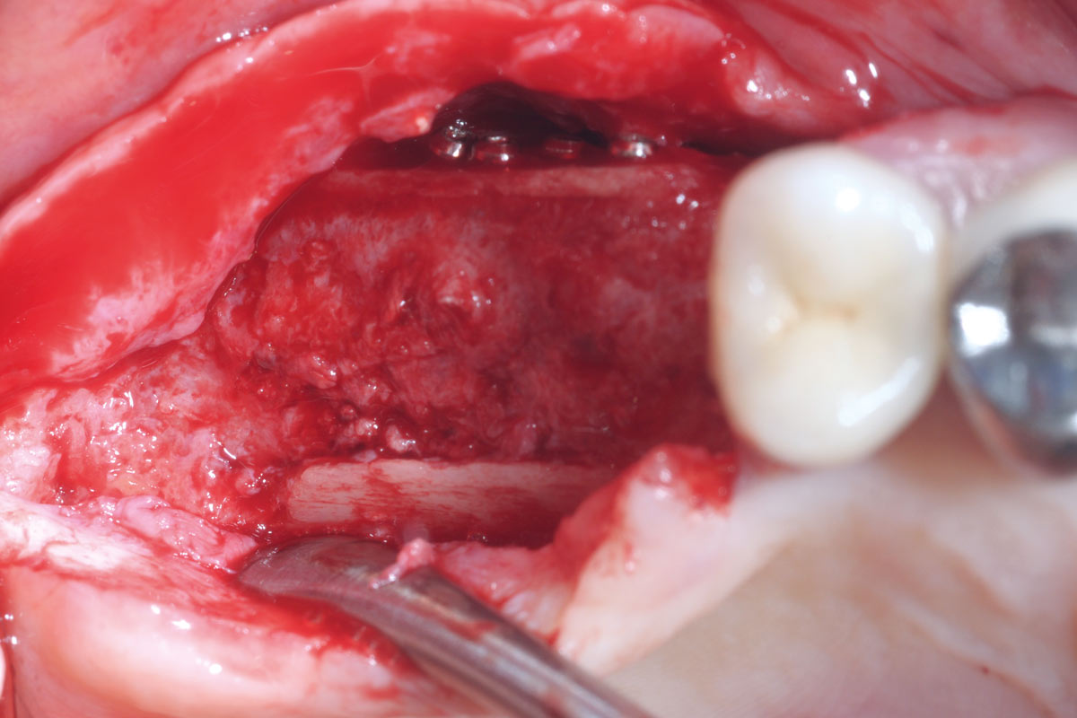 Occlusal view of the remodeled augmented site at re-entry