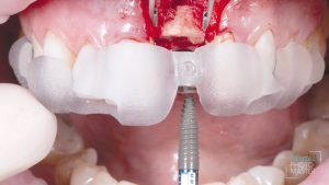 maxgraft® bonering fixated with the implant in the defect