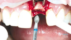 maxgraft® bonering fixated with the implant in the right position