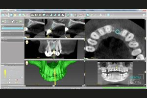 Planning the surgery with CoDiagnostix® for Straumann® Guided Surgery