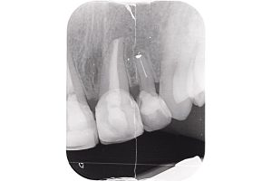 Radiograph before tooth extraction