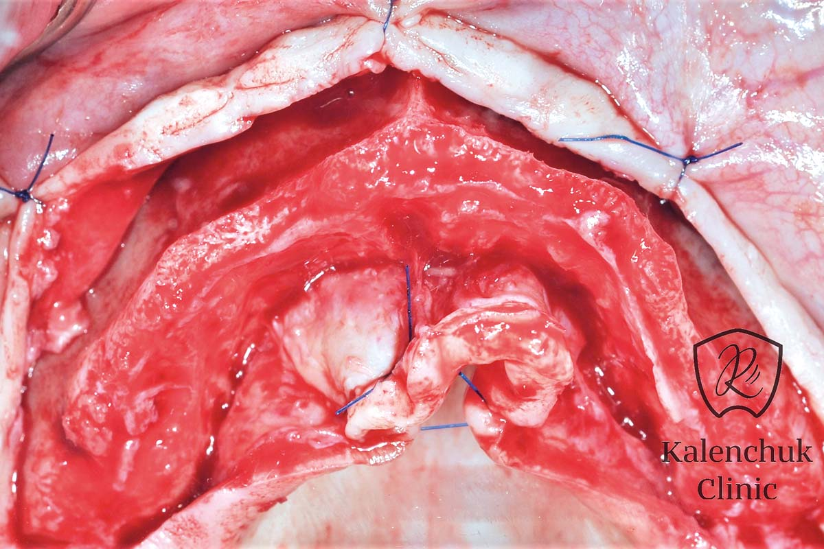 Intra-operative view. Alveolar ridge preparation