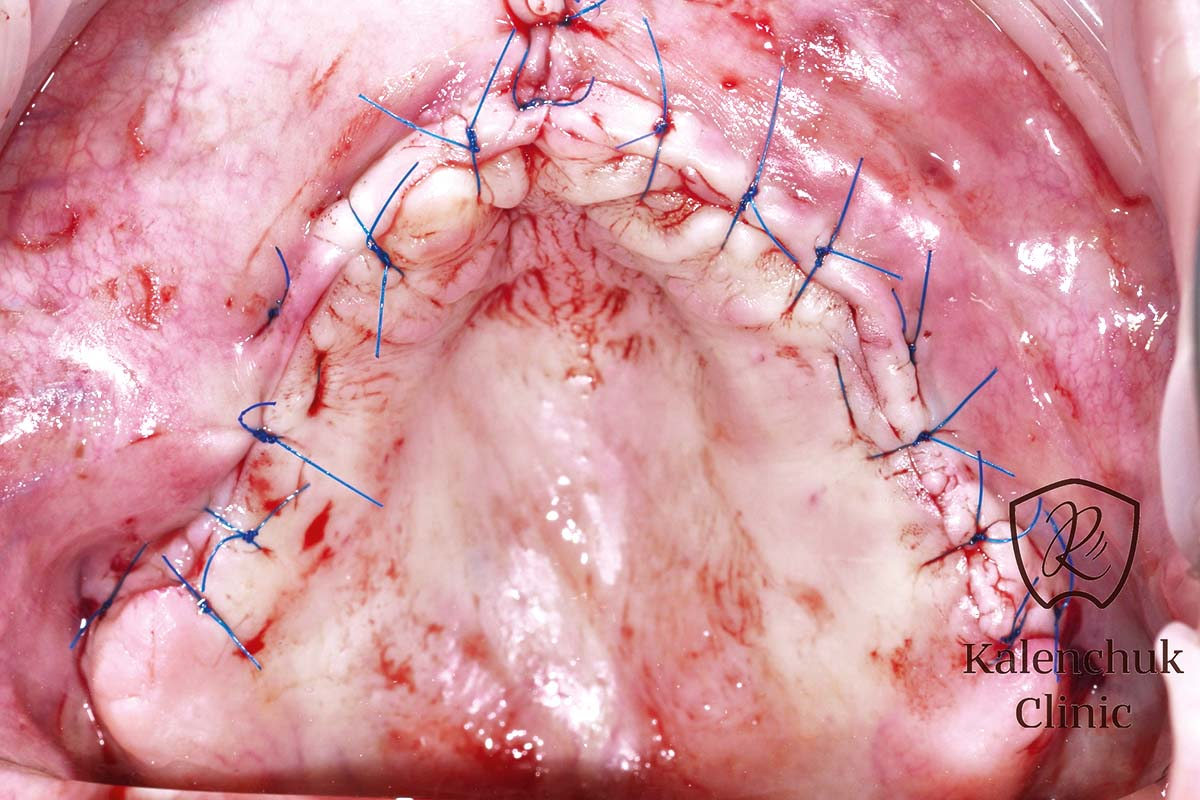 Wound closure with gingival soft tissue