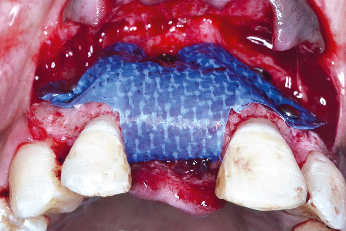 Occlusal view