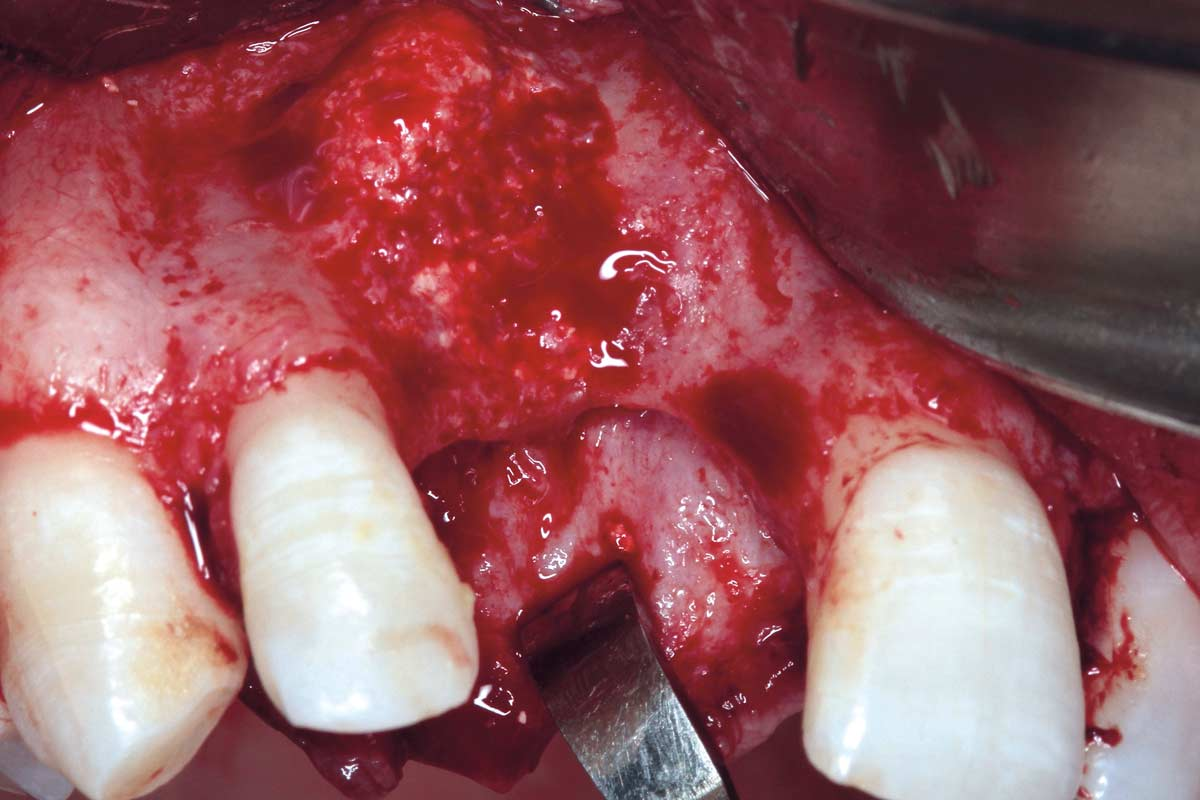 Hard tissue situation after explantation of the failed implant