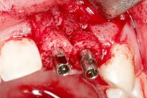 Second maxgraft® bonering and implant placement