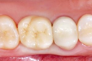 Lithium disilicate crown placement and final setting