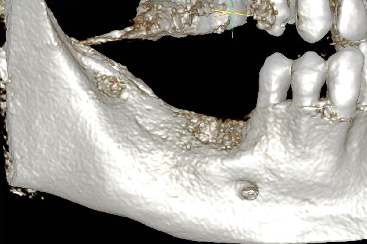 Model of the initial defect computed from a CBCT scan - buccal view
