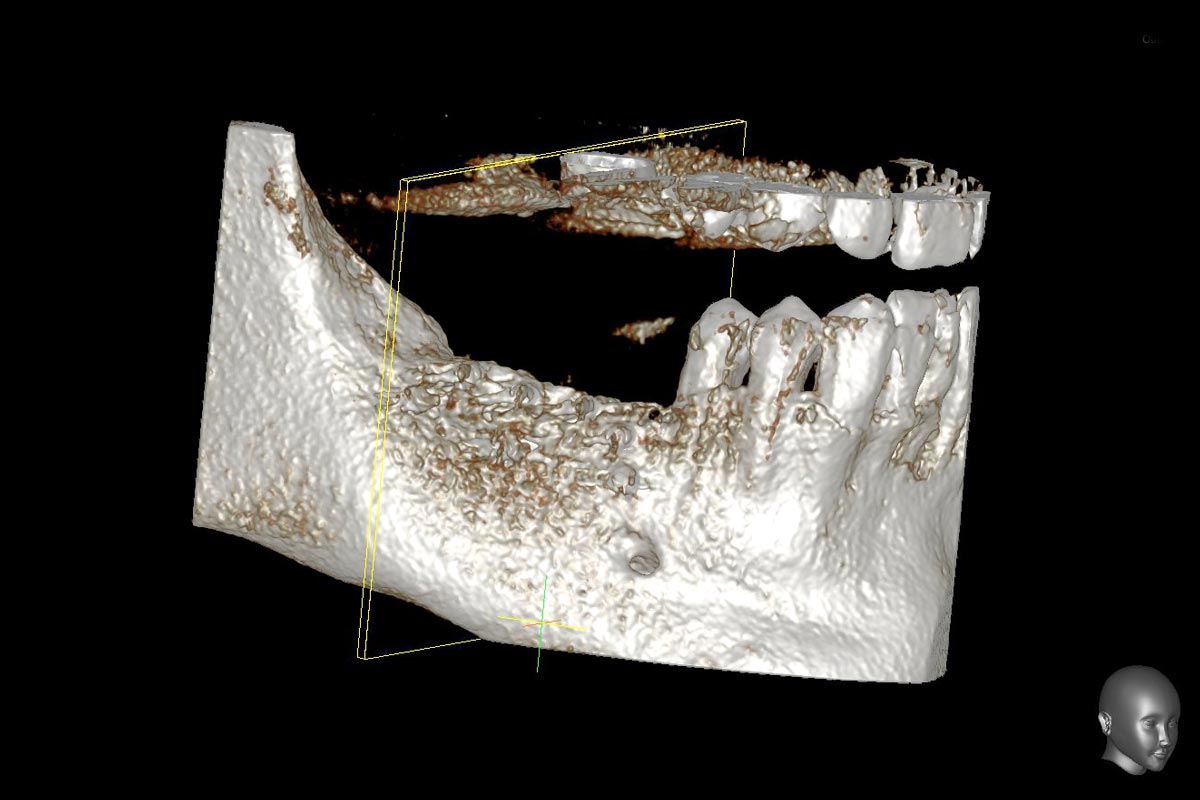 Model of the augmented ridge before implantation computed from CBCT-recordings - buccal view