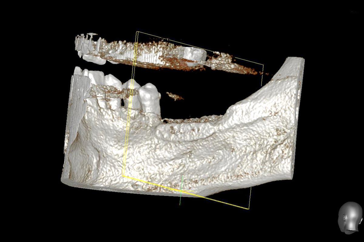 Model of the augmented ridge before implantation computed from CBCT-recordings - lingual view