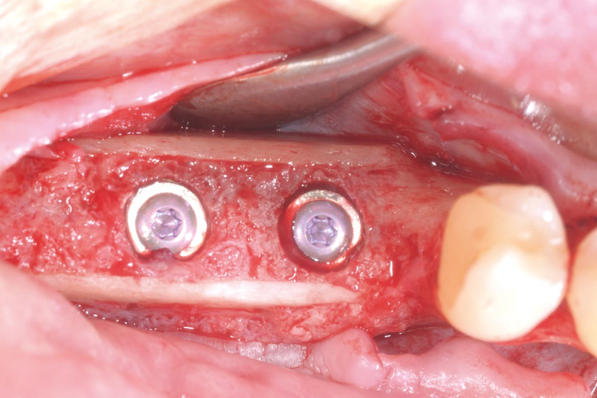 Occlusal view of the implants with cover screws