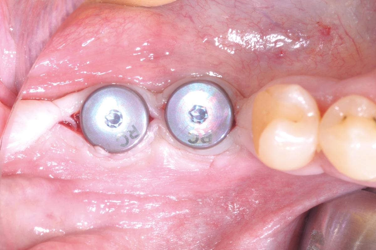 Stab incision for reopening of the surgical site and installation of gingival formers - occlusal view