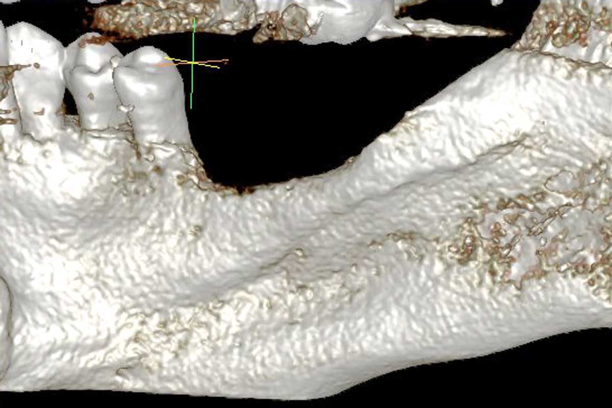 Model of the initial defect computed from a CBCT scan - lingual view