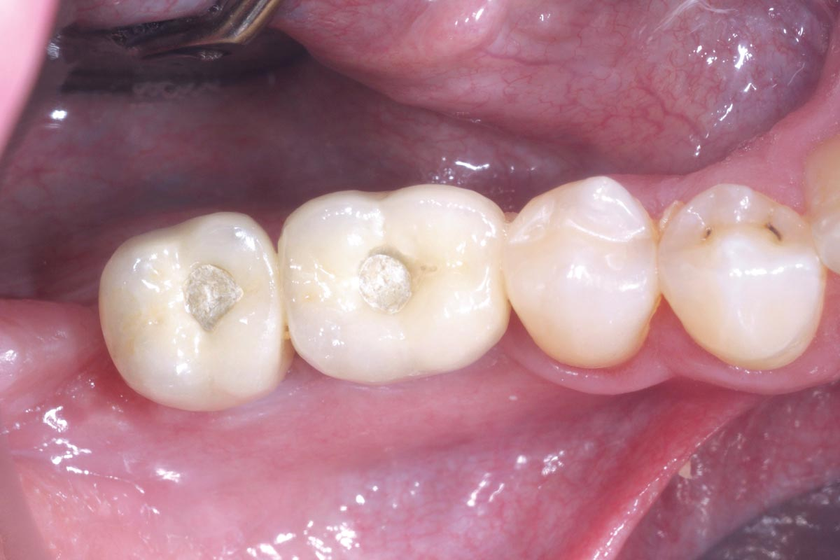 Final prosthetic restauration with provisional screw channels - occlusal view