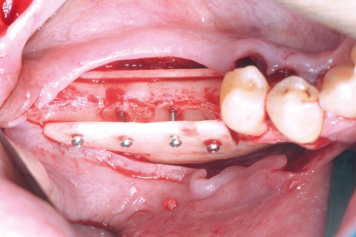 Occlusal view on the immobile container created with the two cortical plates