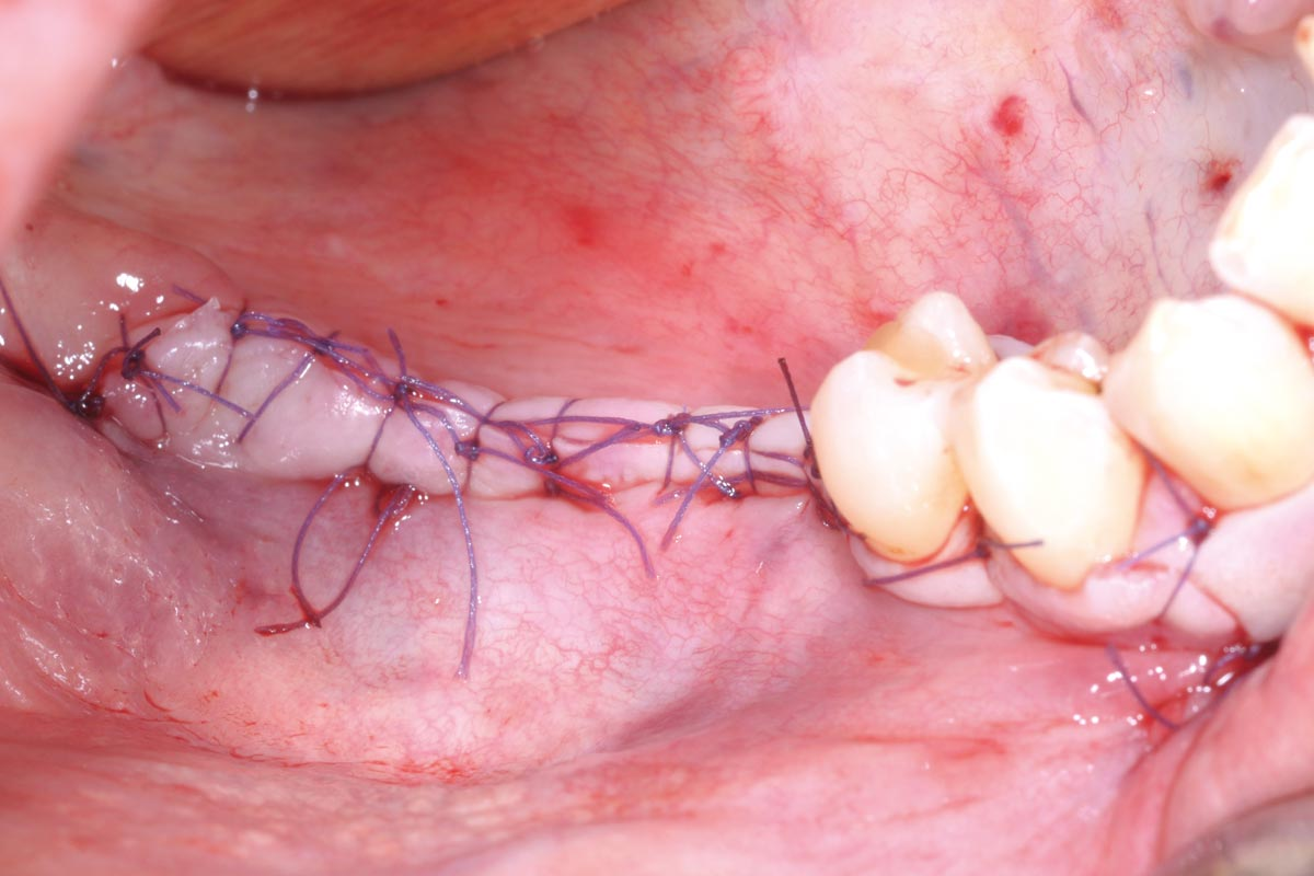 Saliva-tight and compression-free wound closure with single-button and mattress sutures
