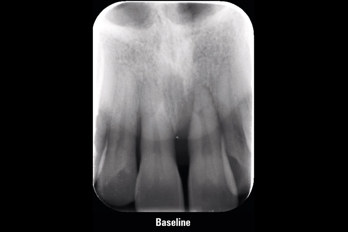 Initial X-ray presenting very deep intrabony defect of tooth 21