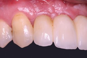 Final prosthetic restoration with implant-borne bridge in regio 12-21 and crown on tooth 22